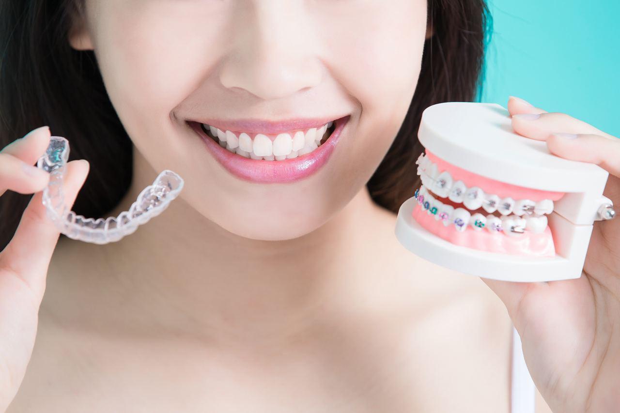 studio itri ortodonzia invisibile prima riga